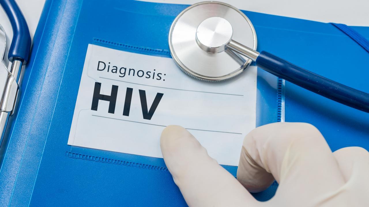 Особенности жизни ВИЧ-положительных людей в России